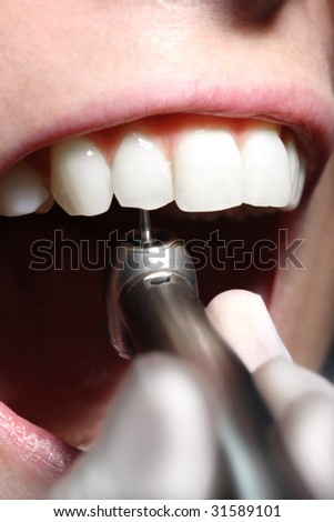 Closeup of a dentist drill in a mouth