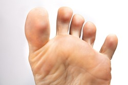 Closeup of a female foot with toes apart to inspect athlete's foot, isolated on white background. Concept of hygiene, fungal infections and onychomycosis