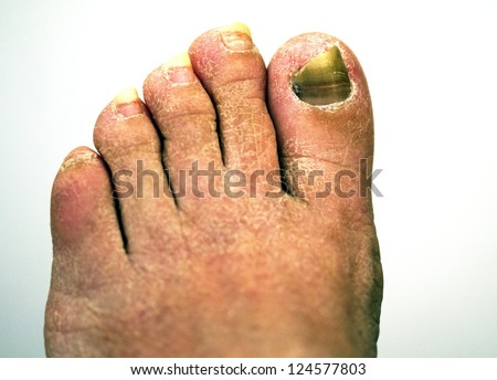 closeup of a foot with arthritis, damaged nails because of fungus and athlete's foot