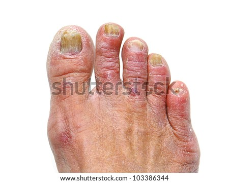 Closeup Of A Foot With Arthritis, Nail Fungus And Athlete's Foot