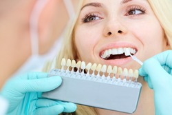 Closeup of a girl with beautiful smile at the dentist. Dental