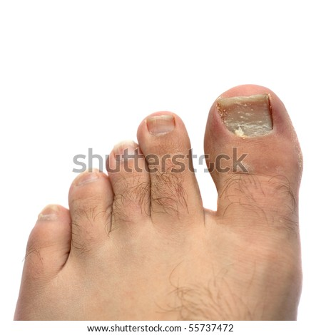 Closeup of a hairy human foot and toes with a cracked and peeling toe nail on the largest toe.