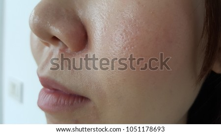 Closeup of a young woman wearing makeup cosmetic on her face, who has oily skin, enlarged pores and blackheads during the working day in the office. Cause of acne problems concept.