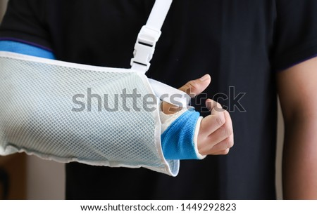 Closeup of asian man's arm with long arm plaster, fiberglass cast therapy cover by  elastic bandage and supporting sling after sport accident. Appropriate treatment in western medicine.