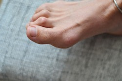 Closeup of barefeet woman with  Medical condition called bunions or hammer toes  feet problem.