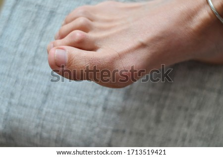Closeup of barefeet woman with  Medical condition called bunions or hammer toes  feet problem. Foto d'archivio ©