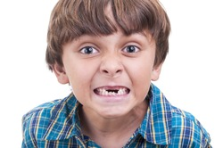 Closeup of cute little boy showing mouth of missing front teeth on white background