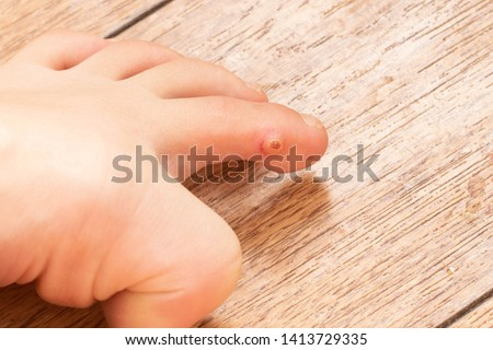 Closeup of foot with an infected wart placed on toe. Foot wart. Foot bottom pathology: verruca, wart, papilloma virus.