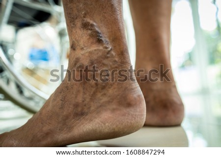 Closeup of leg of senior man standing suffer from varicose vein,vascular disease,spider veins,superficial veins problems,old people swollen skin,muscle pain,sore in the legs, health care of elderly