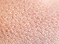 Closeup of porous oily human skin. Large pores on the skin, background, macro, cosmetology