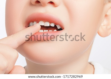Closeup of the boy touches a crooked milk tooth and experiences pain. Tooth loss, dental problems concept Stockfoto ©