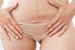 closeup of woman's belly with a scar from a cesarean section or surgery or operation