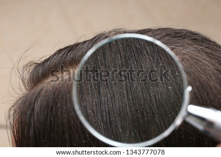 Closeup of woman with dandruff in her hair, view through magnifying glass #1343777078