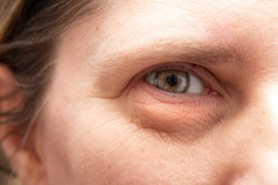 Closeup of wrinkles and heavy puffiness in the eye region of a middle aged woman. Plastic surgery concept