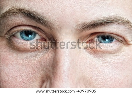 Closeup of young man's blue eyes with problematic skin acne and selective focus