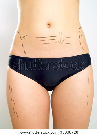 Closeup photo of an attractive Caucasian woman's abdomen and legs marked with lines for abdominal cellulite correction cosmetic surgery.