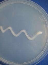 closeup  photo of bacterial growth on agar in petri dish