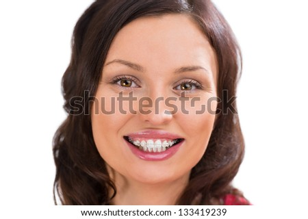 Closeup portrait of charming woman wearing orthodontic ceramic white brackets looking at camera and smiling