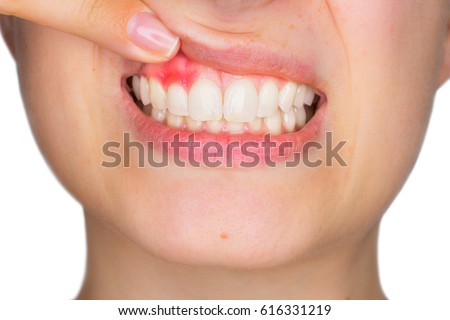 Closeup portrait of young woman showing, with his finger, inflamed upper gingiva with pain expression. Dental care and toothache.