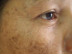 Closeup problem wrinkles dark spots melasma pigmentation skin on face asian woman. Problem skincare and health concept.
