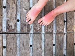 closeup sunburned feet of a woman standing on wooden surface