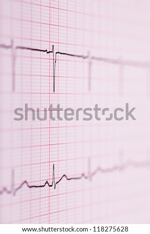 Closeup view of ECG graph. Electrocardiograph