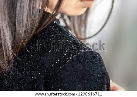 closeup woman hair having problem with dandruff falling on shoulder  #1290616711