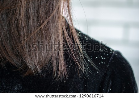 closeup woman hair having problem with dandruff on shoulder  #1290616714