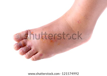 closeup wounds on women foot.