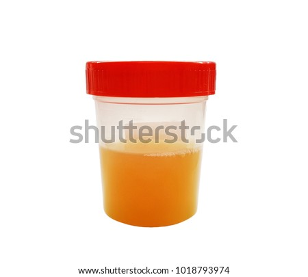 Cloudy or bloody urine sample in sterile plastic container isolated on white background with clipping path, cloudy or bloody urine is a symptom of urinary infection determined by urine dipstick test.