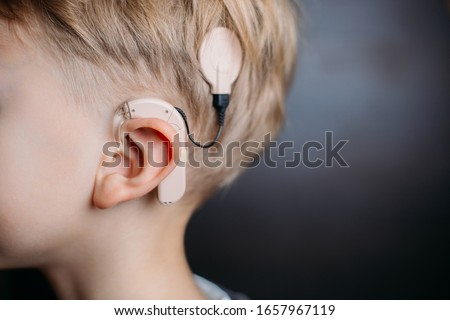 cochlear implant on the boy's head. hearing aid.MED-EL. copy space Stock fotó ©