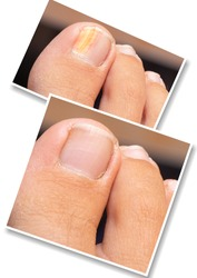 Collage comparison of before and after successful treatment for fungal infection. Big toe of caucasian adult suffering fungal infection causing yellowing of nail. Medicine and health care concept.