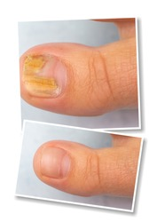 Collage comparison of before and after successful treatment for fungal infection on toe. Closeup of human toe suffering fungal infection causing yellowing of toenail. Medicine and health care concept