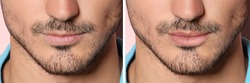 Collage with photos of man before and after lips augmentation, closeup. Banner design