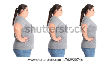 Collage with photos of overweight woman before and after weight loss on white background Photo stock ©
