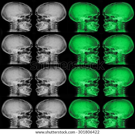 collection of x-ray (head x-ray image)