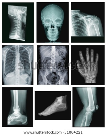 collection of x-ray images: spine, skull, shoulder, chest, belly, hand, ankle, foot, knee