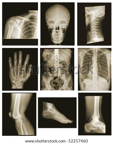 collection of x-ray isolated on black background