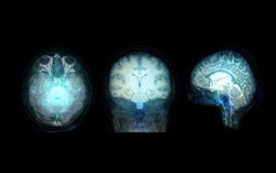 Collection transparent image of the Skull  Blue color with  MRI Brain for medical background concept.