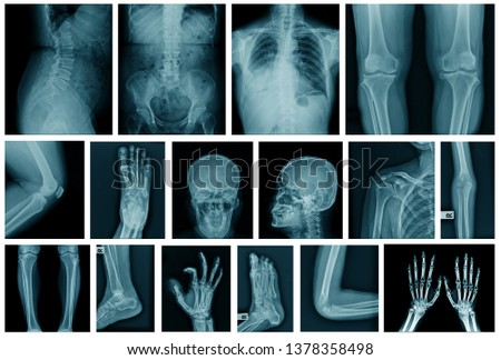 collection x-ray image in blue tone  #1378358498