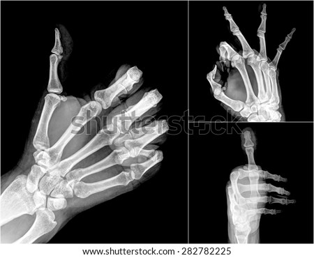 X Ray Hands With Good Sign Ez Canvas