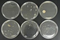 Colonies of bacteria growth on agar plate medium in microbiology laboratory.