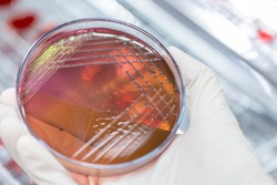Colony Characteristics of Escherichia coli (E. coli) is a Gram-negative, facultatively anaerobic, rod-shaped, coliform bacterium of the genus Escherichia that is commonly found in the lower intestine
