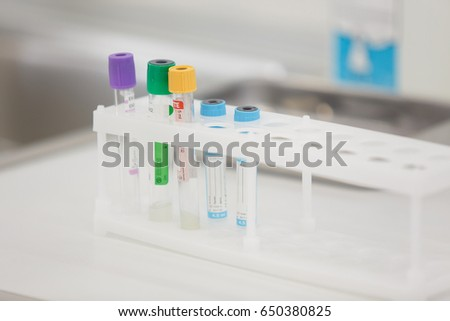 Colored liquids in six test tubes on clinic background