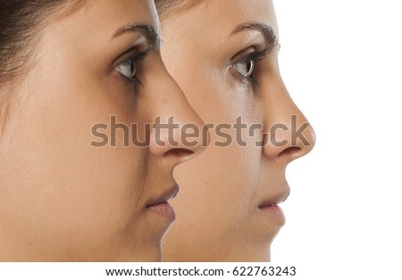 comparative portrait of a young woman before and after nose correction