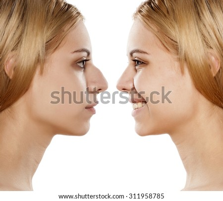 comparative portrait of female face, before and after plastic surgery of the nose