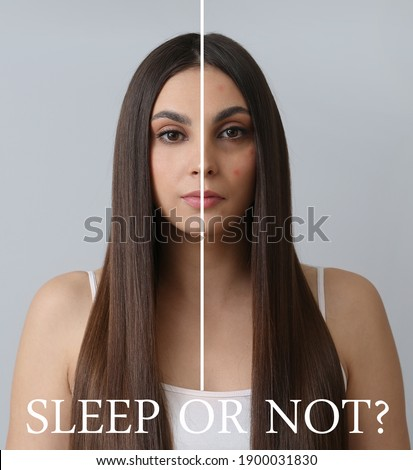 Comparative portrait of woman with and without sleep deprivation problem on grey background Foto stock ©