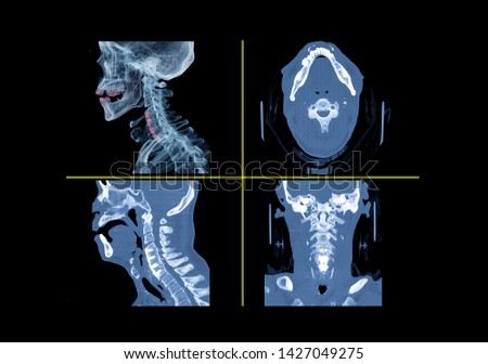 Comparison of CT C-Spine or Cervical spine 3D Rendering image , Axial , Lateral  and  Coronal view with plate and screws