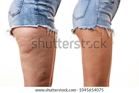 Comparison of female legs thighs with and without cellulite. Skin problem, body care, overweight and dieting concept. Foto stock ©