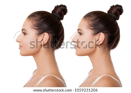 Comparison of Female Nose after Plastic Surgery. Caucasian young Woman in Profile is isolated on white background